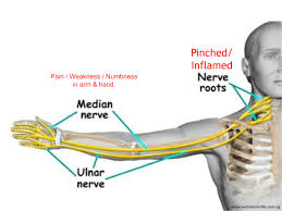Carpal Tunnel – New Hope Family Chiropractic